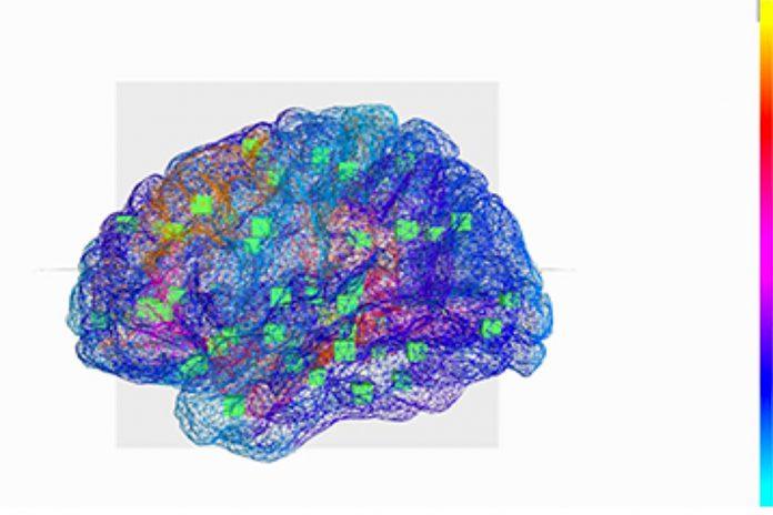 Cérebro virtual ajuda a decifrar a epilepsia