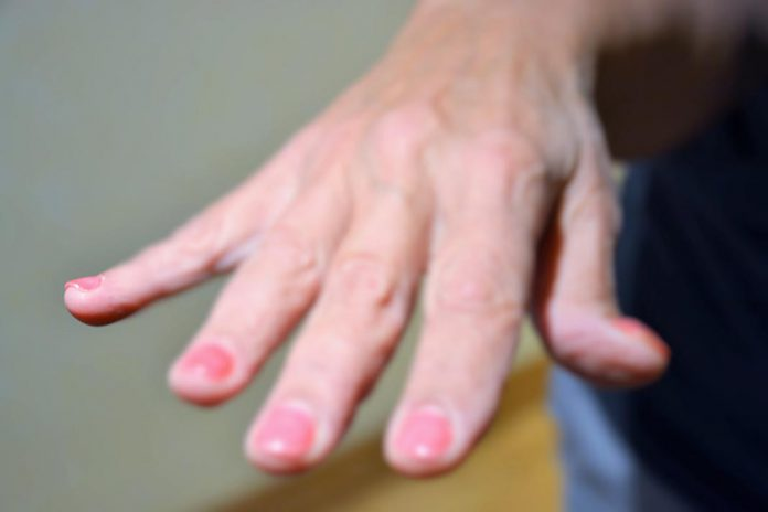 Desvendados os mistérios de possuirmos 5 dedos nas mãos