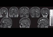 Bimarcador para saber se vai sofrer de doença de Alzheimer