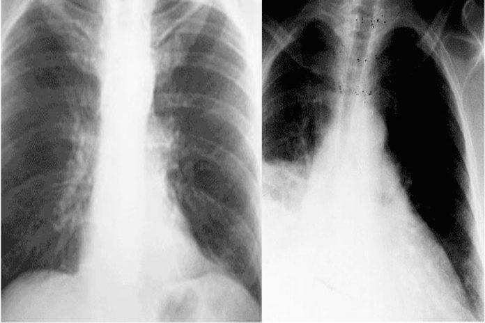 Tuberculose persistir nos pulmões depois do tratamento