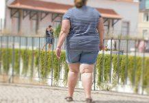 Obesidade aumenta risco de AVC