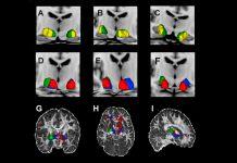 Investigação liderada por portugueses com impacto em distonia e Parkinson