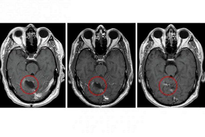 Imagens de cérebro com glioblastoma