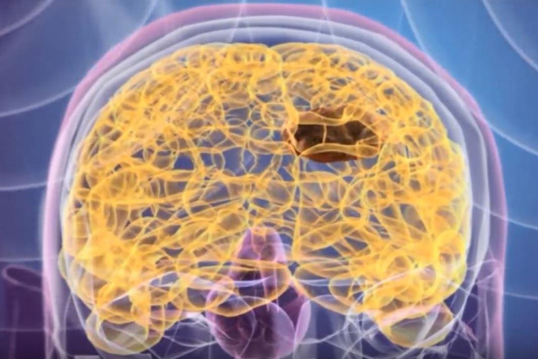 NanoTherm, tratamento dos tumores sólidos cerebrais