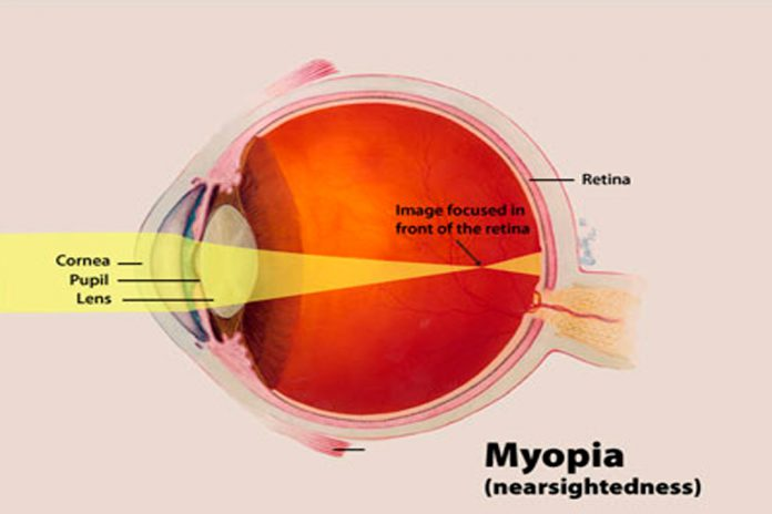Diagrama de miopia no olho humano
