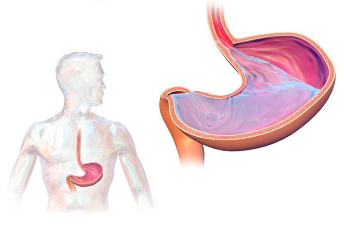 Doença do refluxo ácido e gastroesofágico