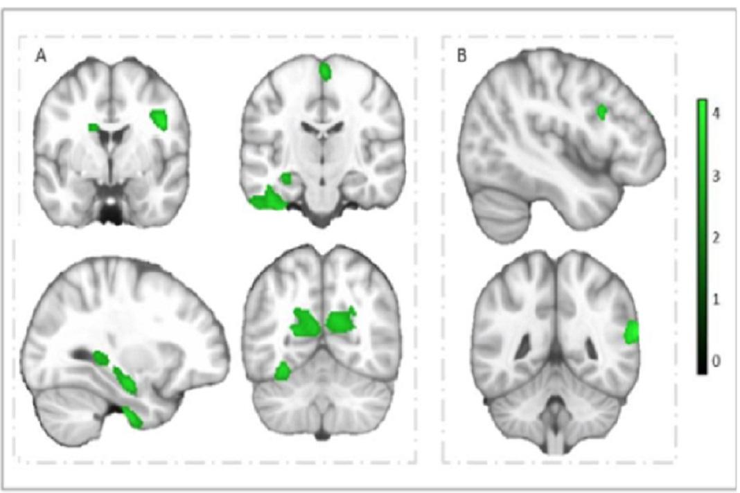 Regiões cerebrais que mostram associações positivas da aptidão cardiorrespiratória e agilidade com o volume da matéria cinzenta, em crianças com excesso de peso ou obesas. Imagem: DR
