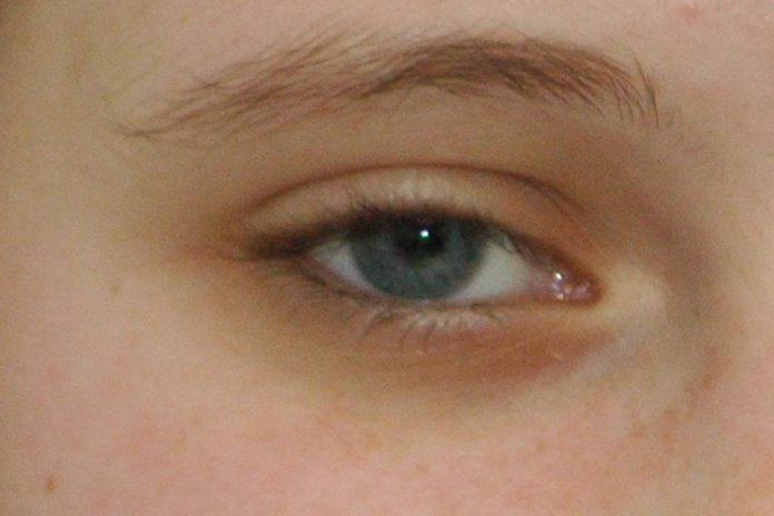 Cuidados na saúde visual das crianças indigna Optometristas