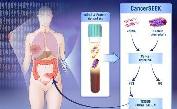 'CancerSEEK' é um teste de sangue não invasivo que deteta e localiza oito tipos comuns de cancro