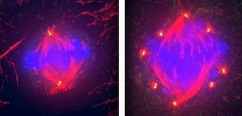 Células saudáveis (esquerda) têm 4 centríolos, o número normal. No caso das células de cancro da mama do subtipo triplo negativo (direita) existem muitos mais centríolos (nesta célula existem 16).