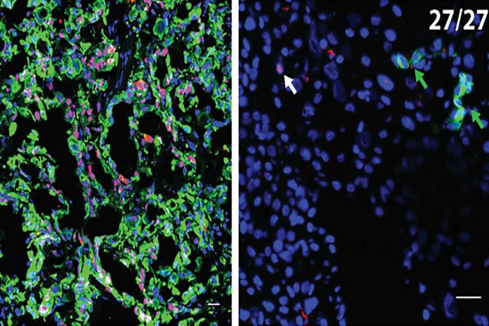 À esquerda, há uma seção do tumor primário de um paciente com cancro pancreático, com células cancerosas (vermelho) e CK19, um marcador de proliferação (verde), evidente. À direita, uma amostra do fígado no mesmo paciente revelou 27 CCDs isolados (células cancerígenas disseminadas). Essas células estão dormentes, mas ativam quando os níveis de células T no paciente diminuem, como ocorre imediatamente após uma cirurgia. Isso fornece uma pista sobre como evitar a metástase hepática em pacientes com cancro pancreático submetidos a cirurgia.