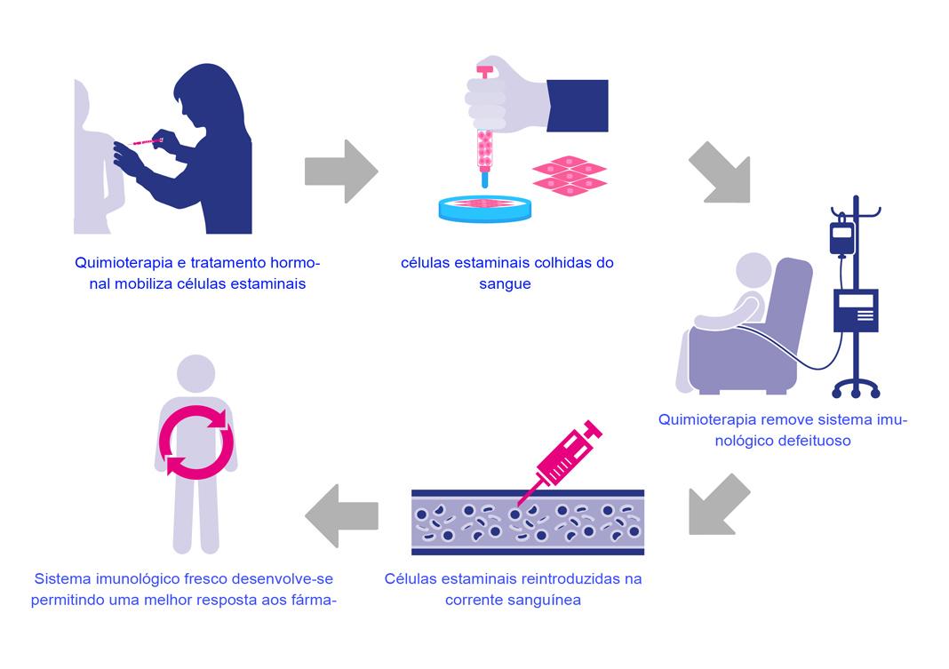 Transplante de células estaminais no tratamento da doença de Crohn