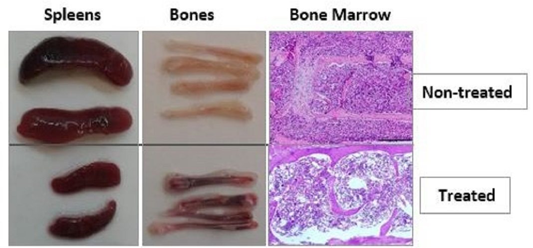 Células cancerosas de leucemia antes e depois do tratamento com o novo medicamentos.