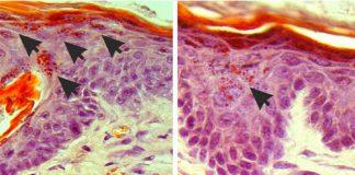 Eczema: Luz permite parar a comichão. Imagem: © Paul Heppenstall e Linda Nocchi / EMBL