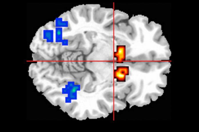 Extrato de cannabis ajuda a restaurar função cerebral na psicose