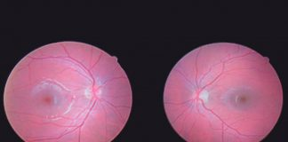 Glaucoma pode ter na origem uma doença autoimune