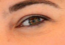 Glaucoma: Diagnóstico precoce para vencer o ladrão silencioso da visão