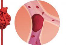 Tromboembolismo Venoso afeta uma em cada quatro pessoas