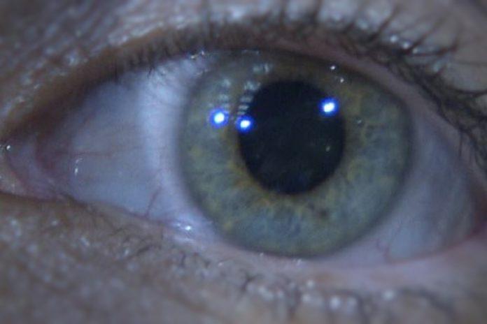 Doenças oculares aumentam com a idade