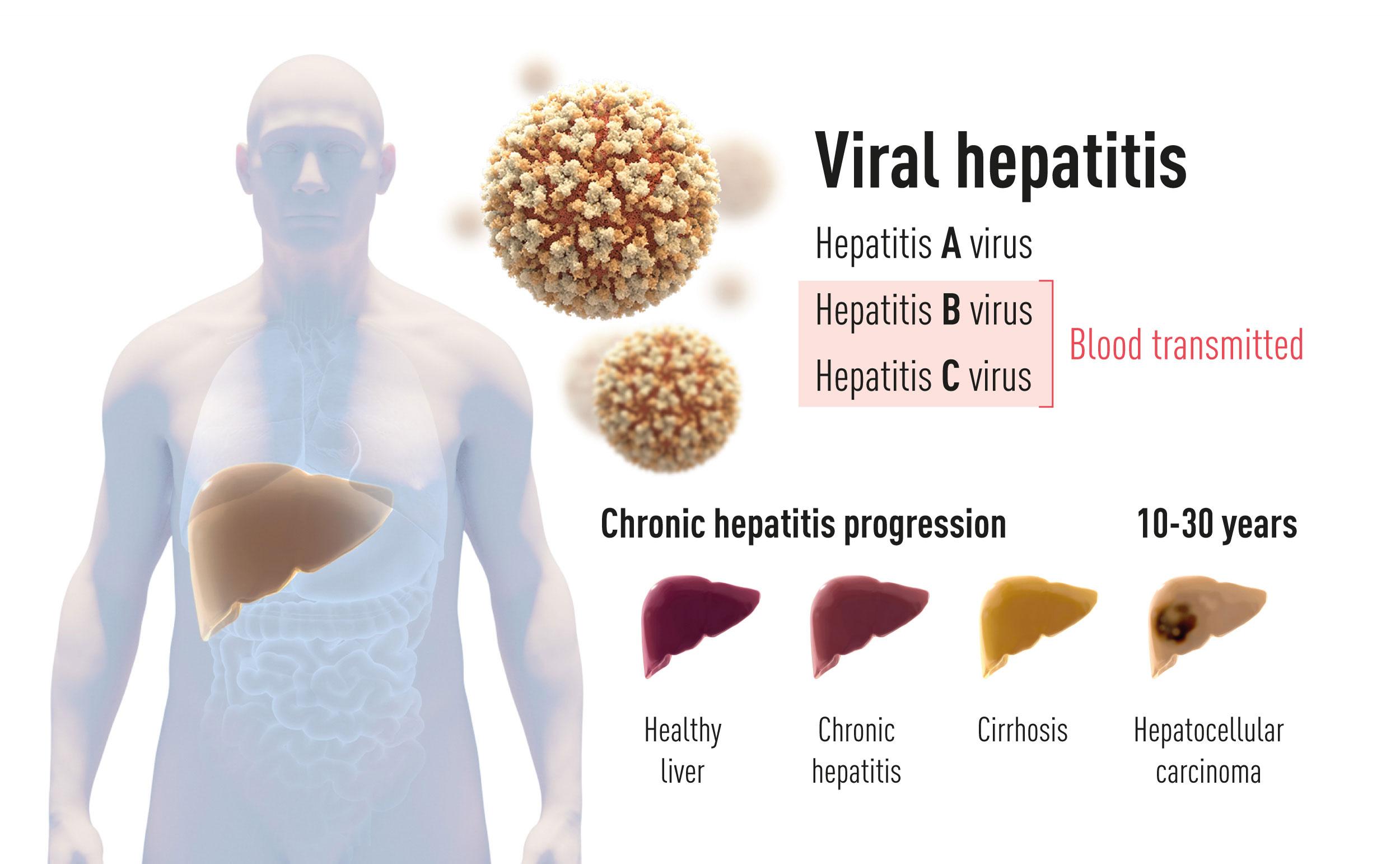 Existem duas formas principais de hepatite. Uma é uma doença aguda causada pelo vírus da hepatite A, que é transmitido pela água ou alimentos contaminados. A outra, causada pelo vírus da hepatite B ou vírus da hepatite C. Esta última de hepatite sanguínea pode levar a uma doença crónica que pode progredir para cirrose e carcinoma hepatocelular.