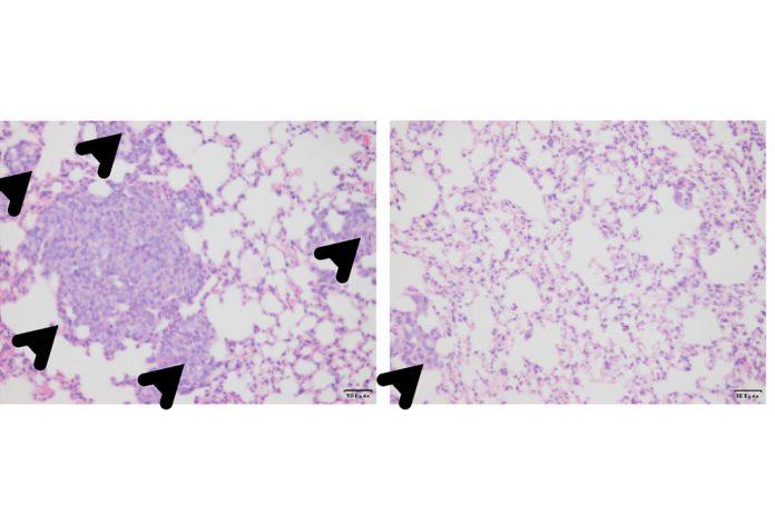 Células do cancro da mama tipo basal formam múltiplos tumores metastáticos (cabeças de setas) nos pulmões (ratos de controle), à esquerda, mas a metástase desaparece com o tratamento com ácido zoledrónico, à direita
