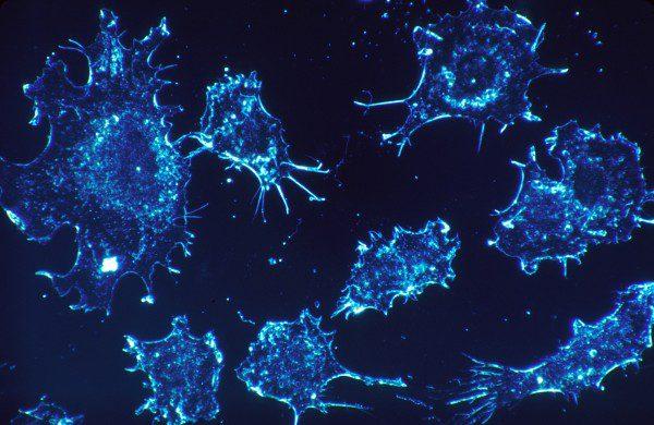 Descoberta de mutações em células cancerígenas permite melhor tratamento do cancro
