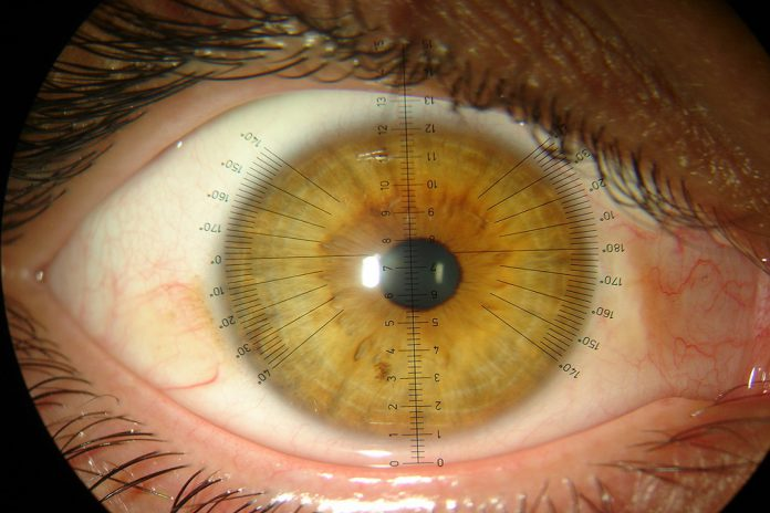 Lentes de contacto inovadoras travam a miopia nas crianças