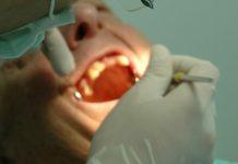 Cancro Oral: Especialistas alertam para diagnóstico precoce