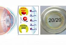 Lente de contato de hidrogel para tratar doenças oculares graves