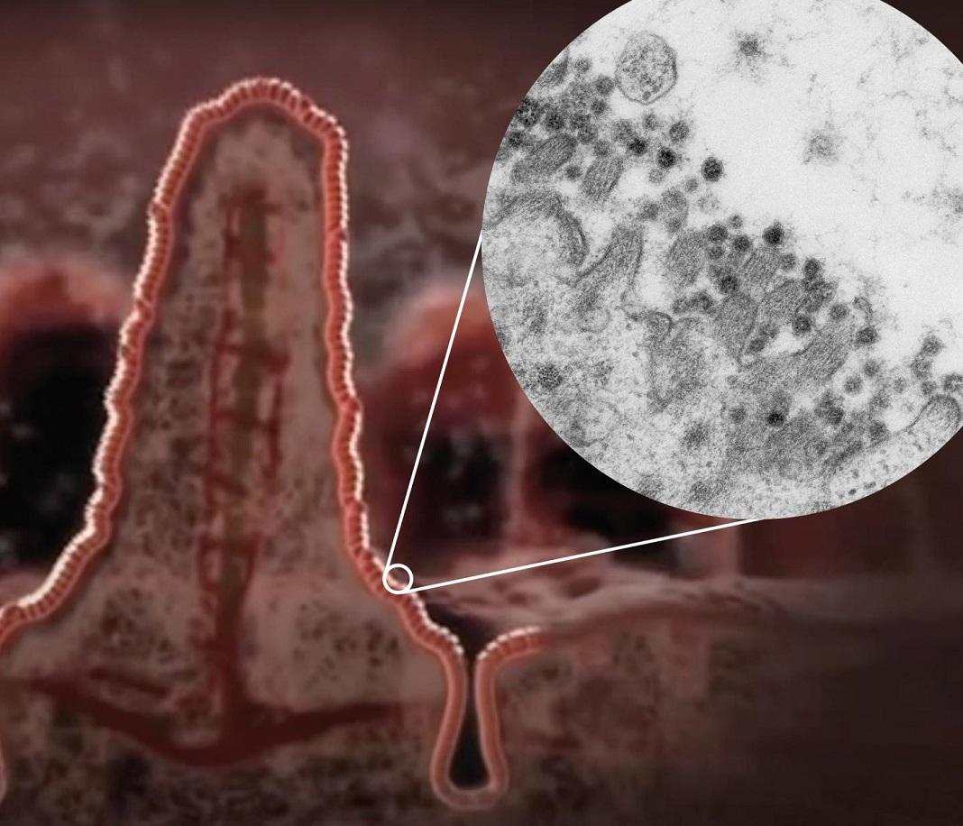 Ilustração de uma vilosidade no intestino com um zoom para uma imagem de microscopia eletrónica do coronavírus SARS-CoV-2 na borda de uma célula intestinal.