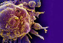 Micrografia eletrónica de varredura colorida de uma célula apoptótica (roxa) fortemente infetada com partículas do vírus SARS-COV-2 (amarela), isolada de uma amostra de paciente. Imagem capturada no NIAID Integrated Research Facility (IRF) em Fort Detrick, Maryland.