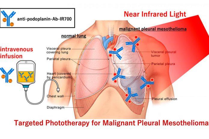 Descoberto novo tratamento para cancro do pulmão