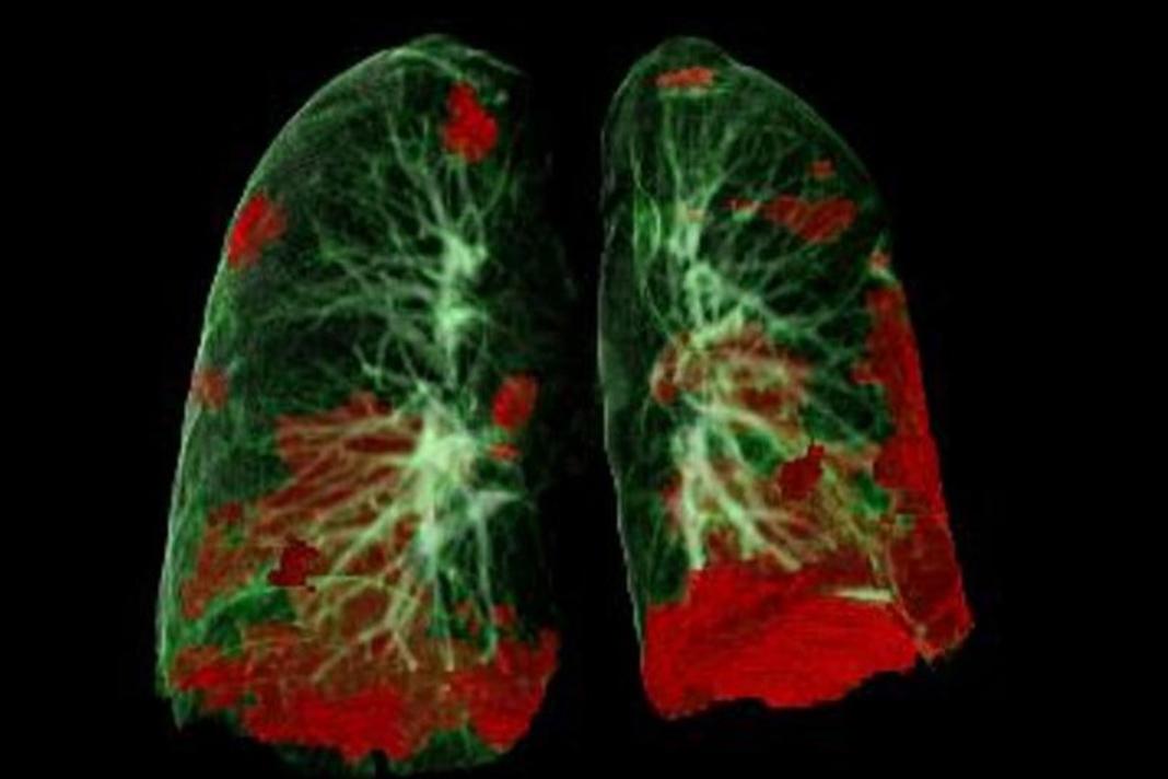 Tomografia computadorizada dos pulmões do paciente mostrando dano da COVID-19 a vermelho