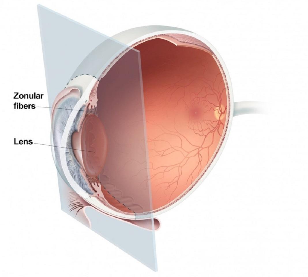 Seção transversal do olho mostrando a localização da lente e das fibras zonulares.