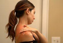 Prevenir e tratar erupções da pele mais comuns