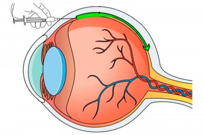 Nanopartículas melhoram eficácia de terapias genéticas para doenças oculares