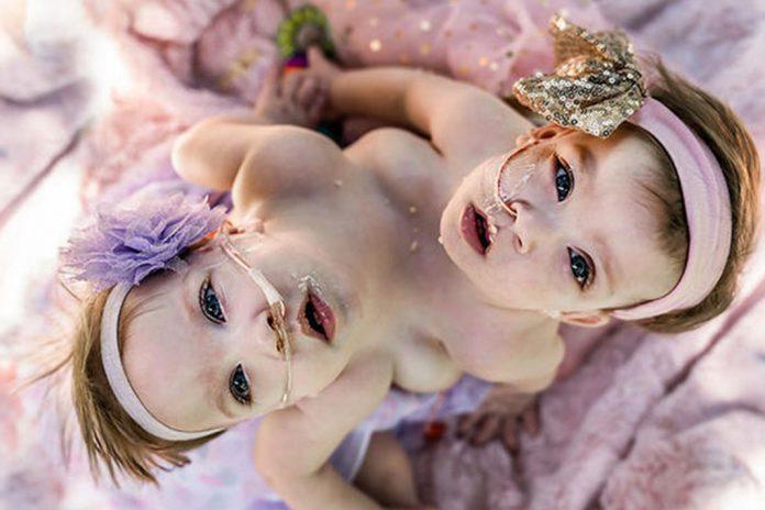 Equipa médica separa com sucesso gémeas siamesas