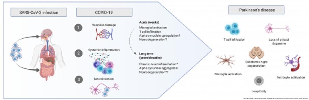Infeção por COVID-19 pode levar a doença de Parkinson