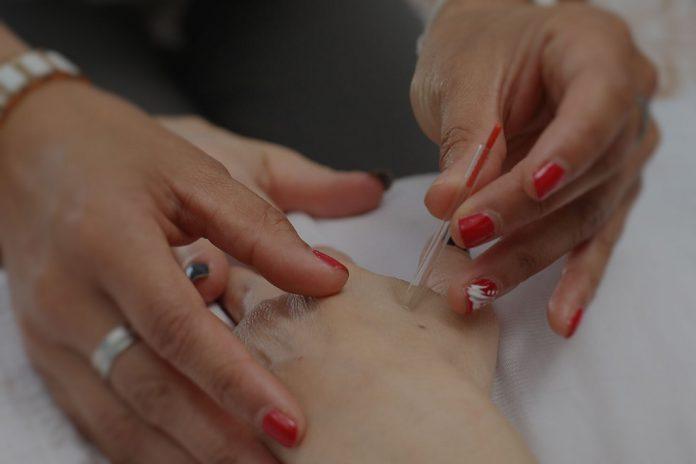 Licenciatura de Acupunctura do Piaget com acreditação pelo A3ES