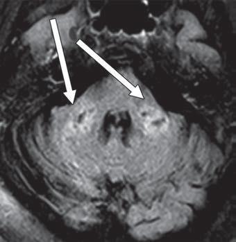 Imagem de RM FLAIR axial mostra prolongamento de T2 em pedúnculos cerebelares médios bilaterais (setas). Os achados foram associados a difusão restrita e áreas de sinal hipointenso T1 sem realce ou suscetibilidade anormal.